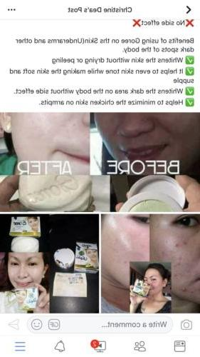 Cream Removes Circle Acne Freckles
